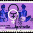 AUSTRALIA - CIRCA 1967 Gynecology — Stock Photo
