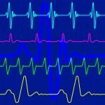 Cardiogram — Stock Vector #36349977