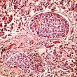 Hepatocellular cancer of liver of a human - Stock Photo