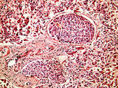 Hepatocellular cancer of liver of a human — Stock Photo