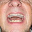 Close up of teeth guard in senior mouth — Stock Photo #34568453
