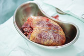 Cardiac surgery heart transplantation — Stock Photo