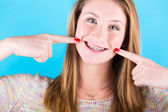 Smiling Beautiful Girl with Braces on Blue Background — Foto de Stock
