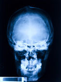 Skull x-ray — Stock Photo