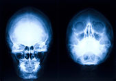 Head xray — Stock Photo