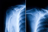 Shoulder x-ray — Stock Photo