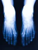 Foot xray — Stock Photo