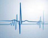 Battito cardiaco — Foto Stock