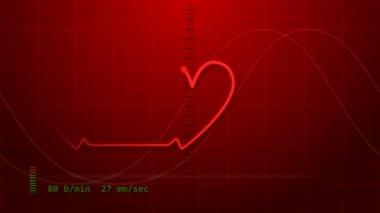 EKG - Electrocardiogram — Stock Video