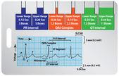 Guide ECG — Stock Vector