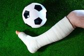 Broken leg — Stock Photo
