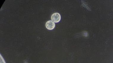 Infusoria under microscope — Stock Video