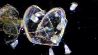 Vorticella under microscope — Stock Video