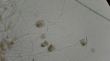 Vorticella al microscopio — Video Stock