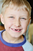 Little boy lost milk tooth — Stock Photo