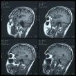 Magnetic resonance image (MRI) of brain — Stock Photo #33579387