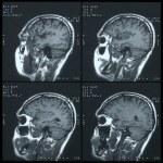 Magnetic resonance image (MRI) of the brain — Stock Photo