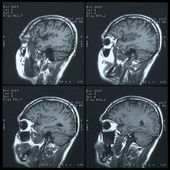 Magnetic resonance image (MRI) of the brain — Stock Photo