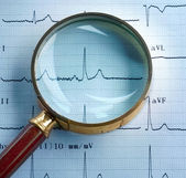 Magnifier on cardiogram — Stock Photo
