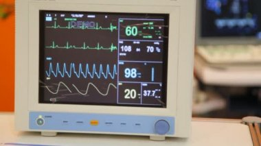 Monitor of indications of action of heart, frequency and amplitude of reductions — Stock Video