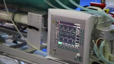 Monitor of warm rhythm showing electrocardiograms close up — Stock Video