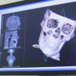 Ultrasound image of skull rotates on screen closeup — Stock Video