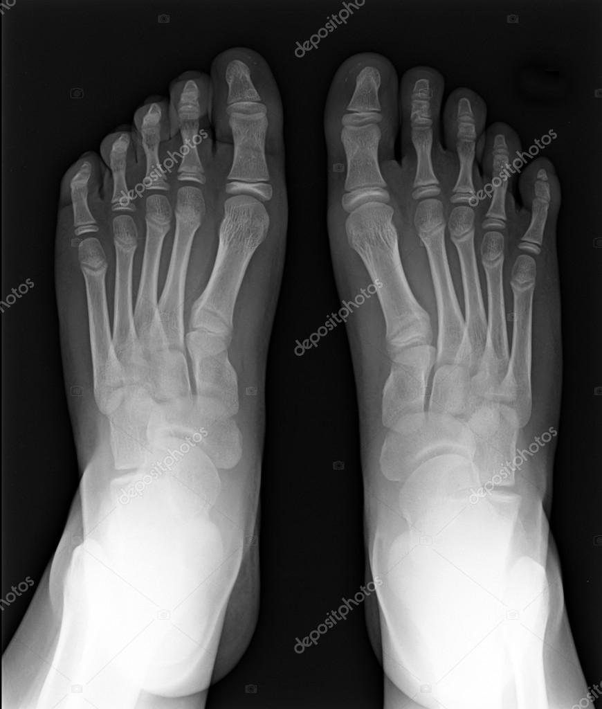 MRI of Foot fingers exposed on x-ray black and white film  Stock Photo #13702516