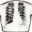 X-Ray Image Of Human Healthy Chest — Stock Photo