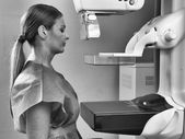 Woman taking a mammogram x-ray test. Mammography machine in a ho — Stock Photo