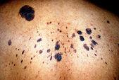 Human skin moles. — Stock Photo