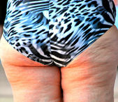Cellulite. — Stock Photo