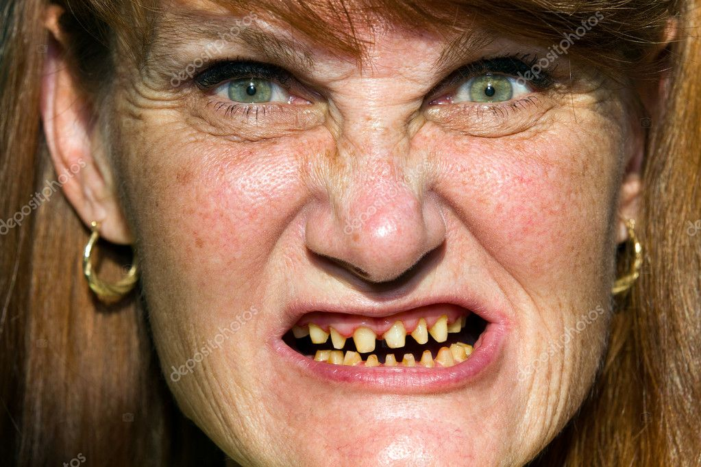 http://st.depositphotos.com/1001857/1286/i/950/depositphotos_12860367-Scary-Face-Bad-Teeth.jpg