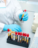 Test tubes with blood — Stock Photo