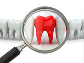 Search aching tooth in row of healthy teeth. — Stock Photo
