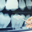 Hand in glove showing on teeth x-ray — Stock Photo