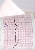 Electrocardiogramen ctg — Stockfoto