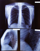 X-ray of a thorax — Stock Photo