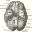 Dissection of the human brain - ストック写真