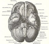 Dissection of the human brain — Foto de Stock