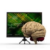 Human heart with ECG heart beat monitor — Stock Photo