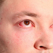 Man with conjunctivitis Man with conjunctivitis — Stock Photo