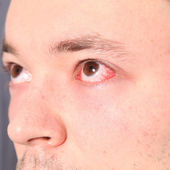 Man suffering from conjunctivitis — Stock Photo