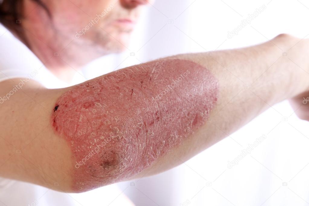 Le traitement effectif le psoriasis de la maison