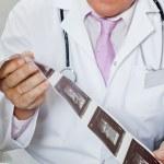 Radiologist Holding Ultrasound Print — Stock Photo