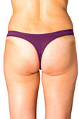 Cellulite and obesity — Stock Photo