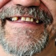 Man's face with smiling toothless — Stock Photo #26387265