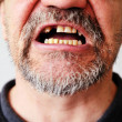 Man's face with open toothless mouth — Stock Photo #26387841