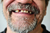 Man's face with a smiling toothless — Stock Photo