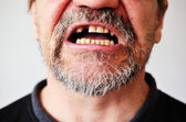 Man's face with an open toothless mouth — Stock Photo