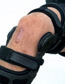 Knee Brace. — Stock Photo